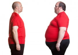 Prevention is better than a surgical cure for the nation's weight woes